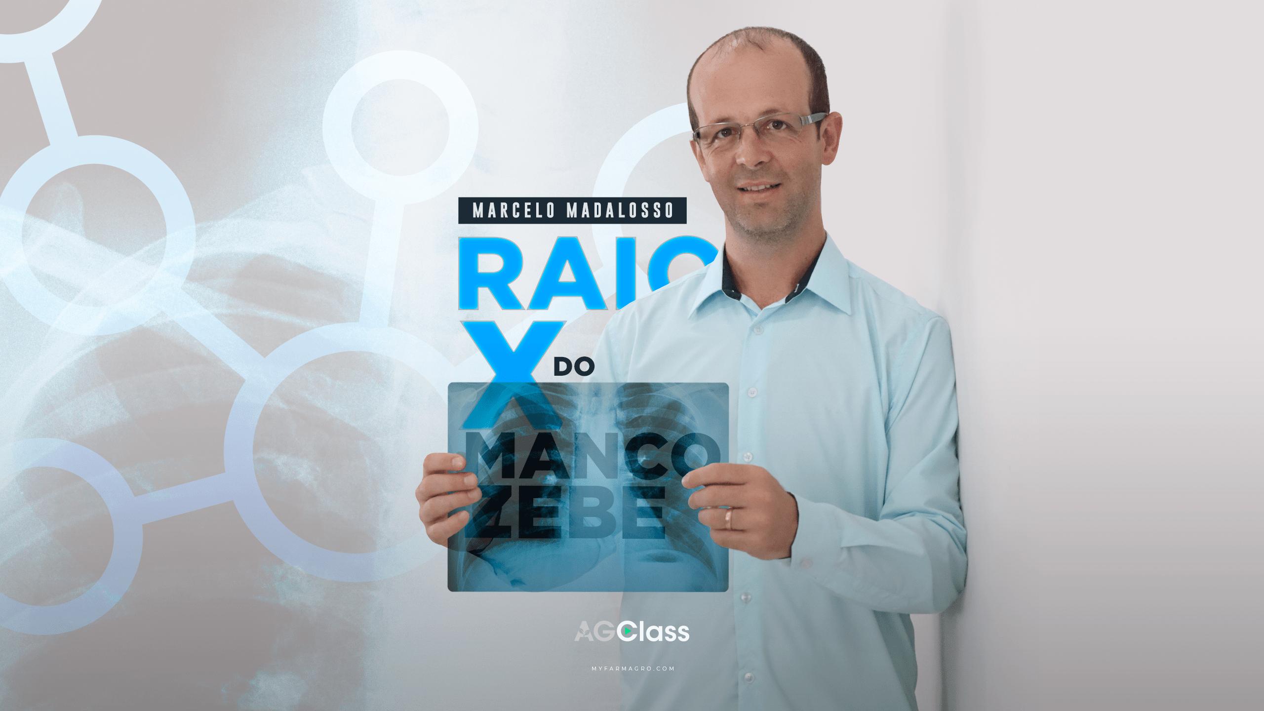 RAIO-X DO MANCOZEBE